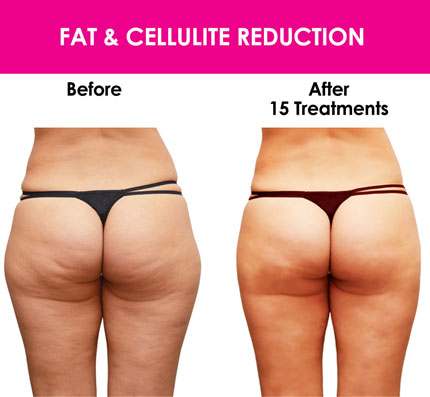 Image result for does non invasive laser lipo work